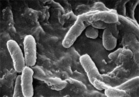 Scanning Electron Micrograph of Pseudomonas aeruginosa