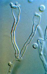 Filobasidiella (Cryptococcus) neoformans