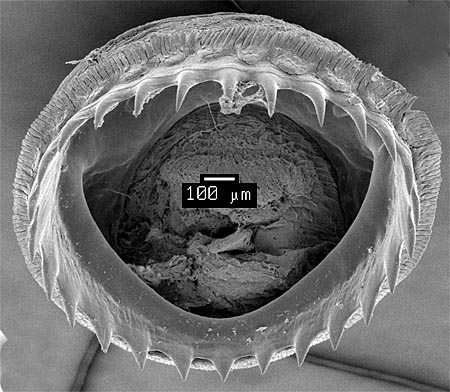 SEM_photograph_of_a_large_dactylus_sucker.