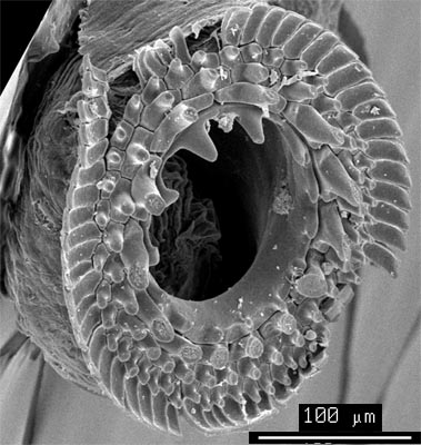 SEM_photograph_of_a_manus_sucker.